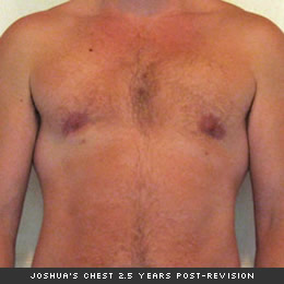 Joshua's chest 2.5 years post-revision